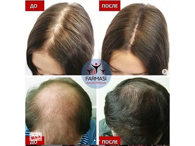 продам Шампунь для жирного та ослабленого волосся бу в Черновцах
